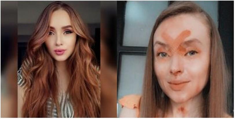 Lucia Tamayo la Joven quemada con Acido